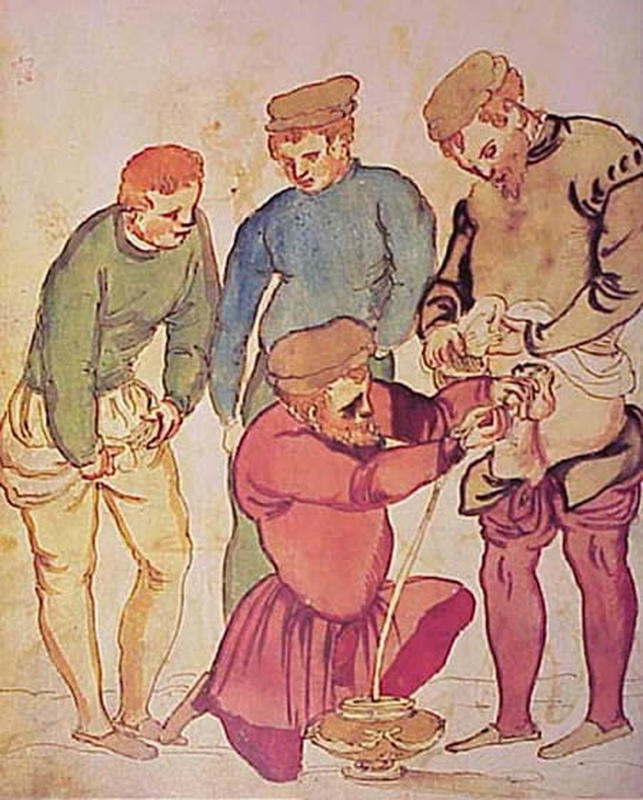 Medical Treatments of the Middle Ages 2