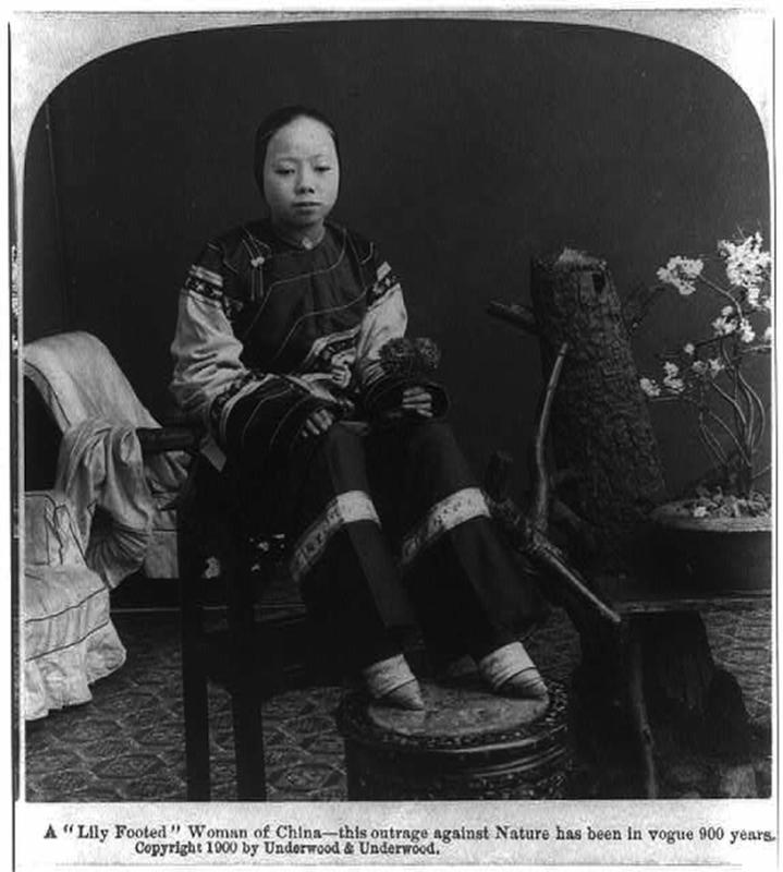 Chinese Women With Bound Feet 19