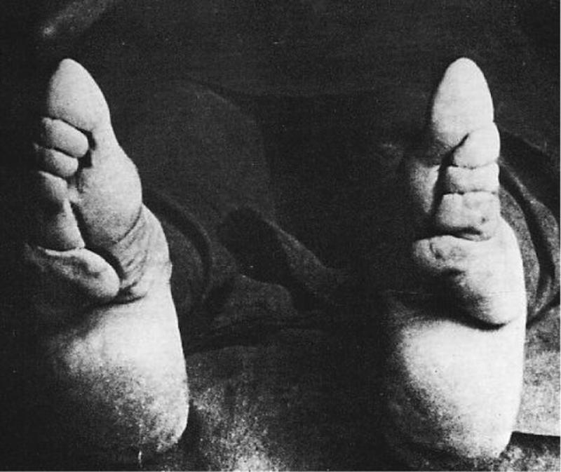 Chinese Women With Bound Feet 24
