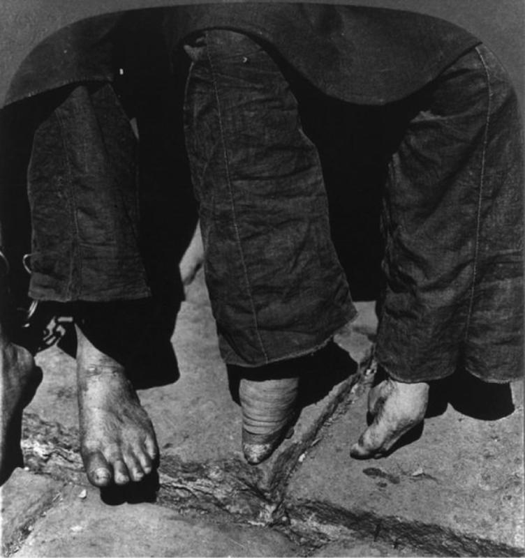 Chinese Women With Bound Feet 29