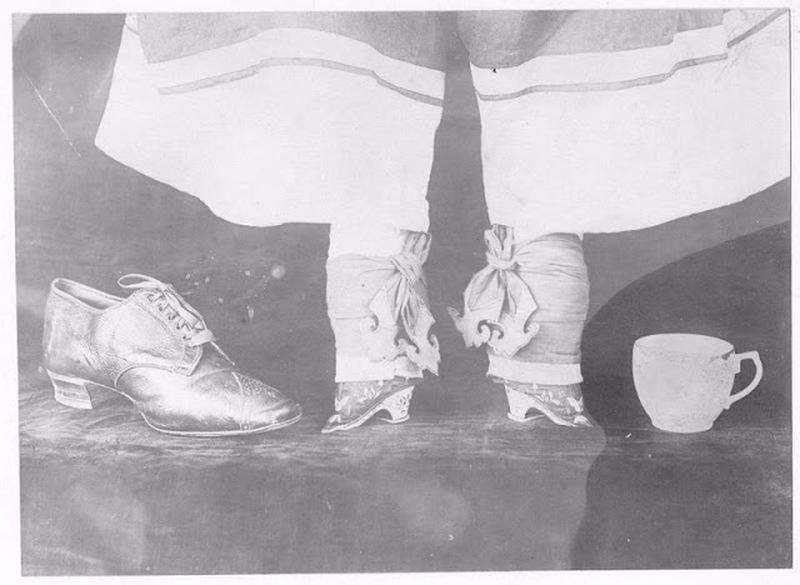 Chinese Women With Bound Feet 30