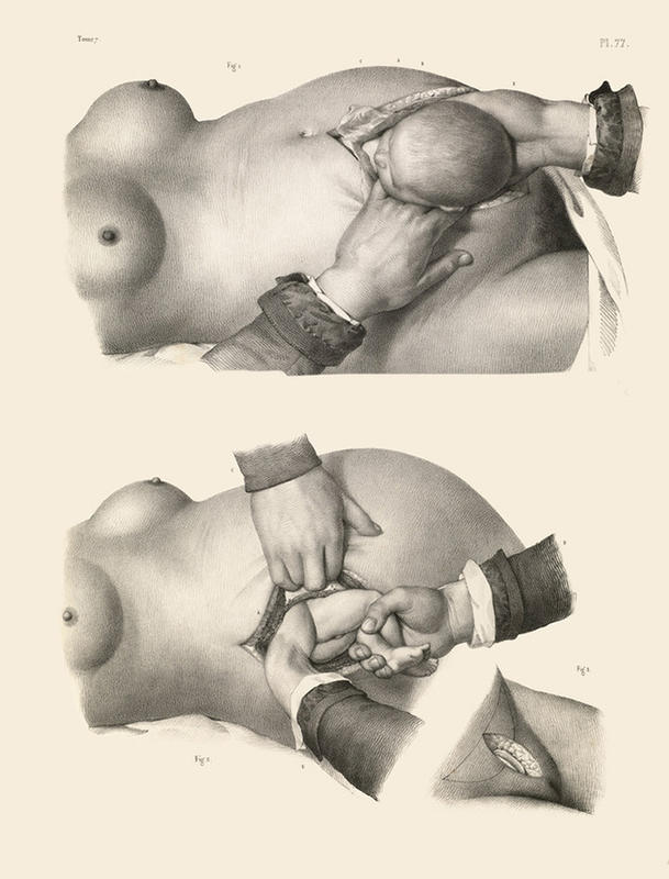 Surgery-from-the-past-5