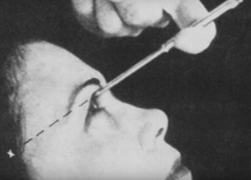 Brief History Of The Lobotomy